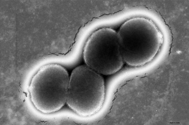 Microscopic image of the bacteria that causes gonorrhea