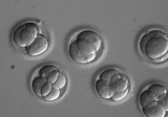 In this microscope photo provided by Oregon Health & Science University, human embryos grow in a laboratory for a few days after researchers used gene editing technology to successfully repair a heart disease-causing genetic mutation.